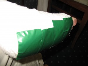 I reinforced the gauze of my Croatian cast with duct tape so it would survive the trip through Croatia, to the airport, and on to Vienna.